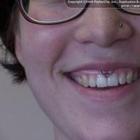 Покалывания над верхней губой 125