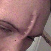 Брейн пирсинг на между глаз